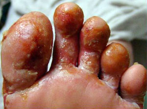 Pseudomonas Aeruginosa Pathogenesis