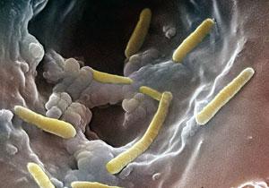 Pseudomonas Aeruginosa Diagnosis